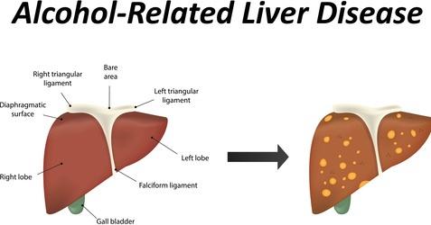 alcoholism-liver-disease