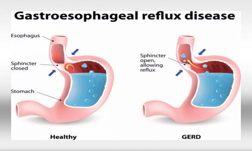 gastroesophageal-reflux-disease-2